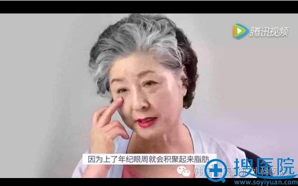 韩国原辰面部提升术案例主角:69岁婆婆