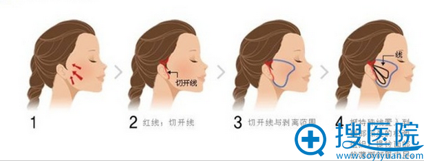 微创悬吊除皱术手术过程