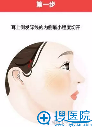 耳上侧发际线的内侧较小程度切开