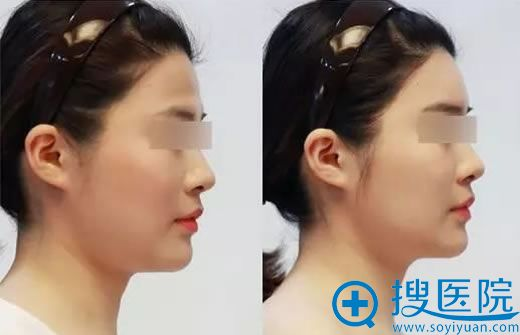 洛阳华美医疗美容医院玻尿酸丰额头.jpg