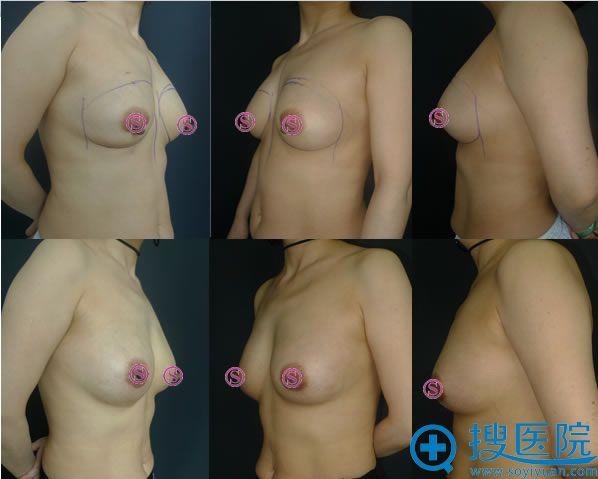 胸部修复案例