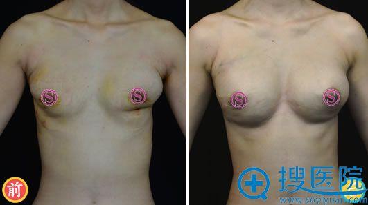 瘢痕松解+脂肪移植胸部修复案例