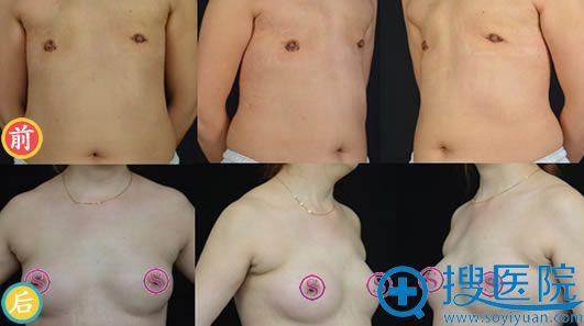 假体修复胸部案例
