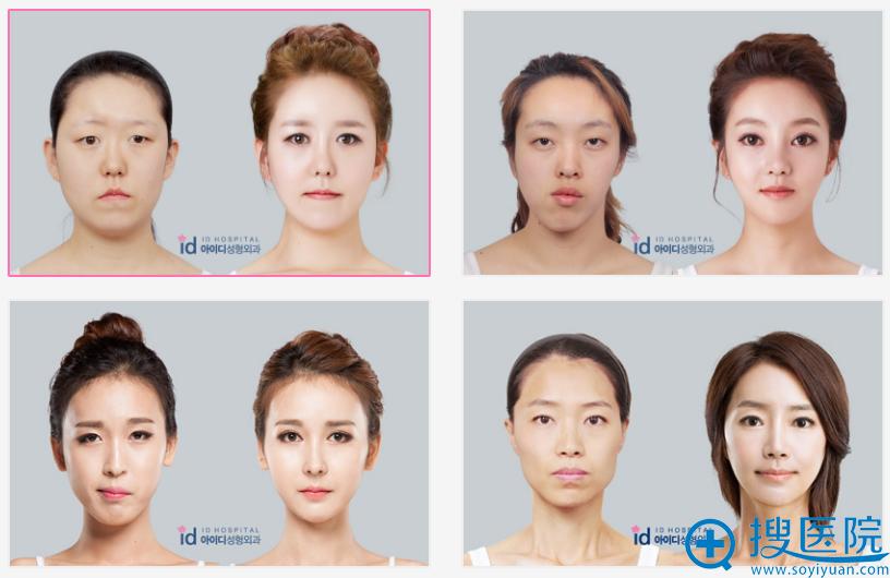 韩国id整形案例前后对比照
