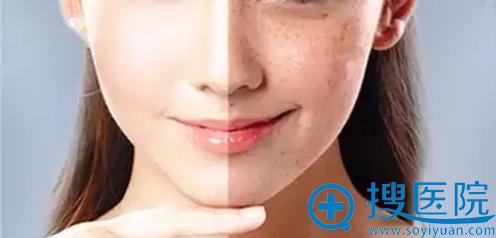 新皮肤质地改变