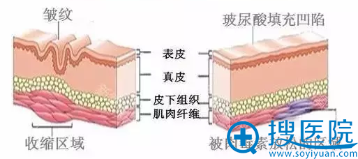 注射玻尿酸,填充凹陷
