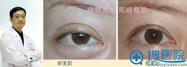 朱晓峰博士眼部修复案例