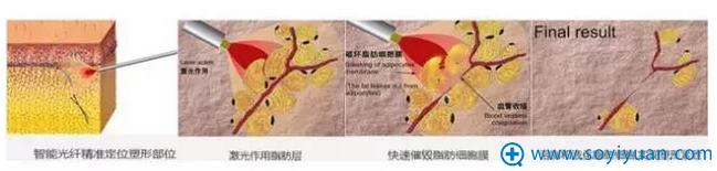 秦皇岛和生光纤溶脂术手术原理