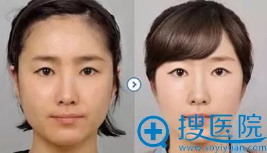 秦皇岛和生光纤溶脂术手术案例效果图