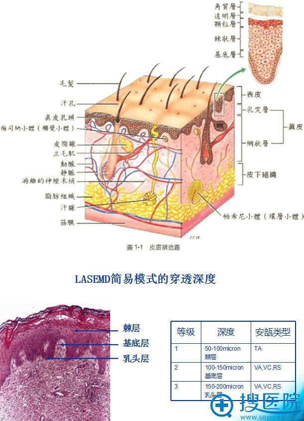皮肤构造图及lasemd穿透深度