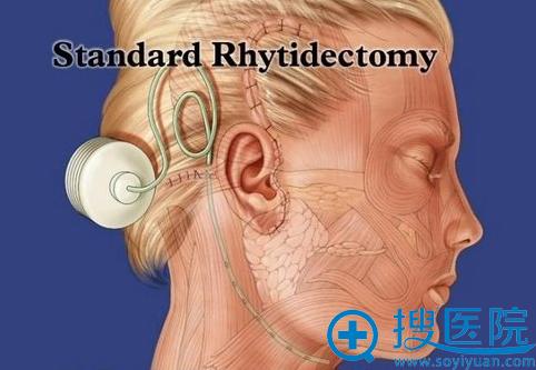 韩国BIO整形颈部除皱术手术切口