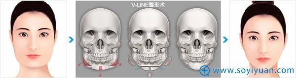 高兰得V-line整形术手术方法