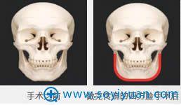 传统四方脸手术效果示意图
