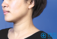 BIO整形外科朴东满教授告诉你 颈部是女人的第二张脸
