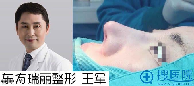 王军医生与耳软骨抬高鼻尖案例