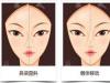 整形医生王锦城告诉你:隆鼻失败修复要注意什么