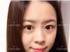 上海时光整形医院案例 95后内双女孩全切双眼皮+开内眼角一周啦