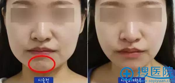 玻尿酸和瘦脸除皱一起隆下巴案例