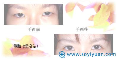 日本高柳进医生埋线双眼皮案例