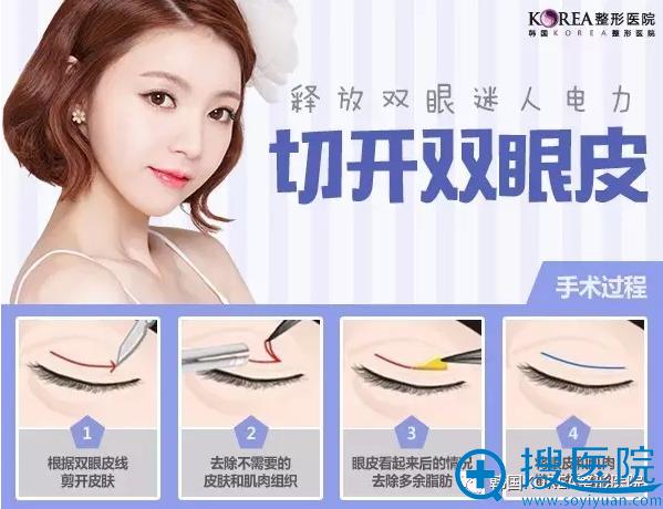 韩国KOREA整形医院切开双眼皮手术过程3D演示图
