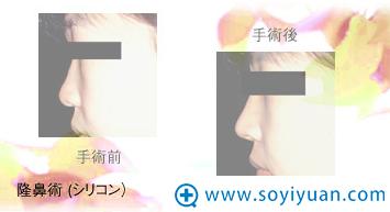 日本高柳进医生隆鼻手术案例