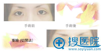 日本高柳进医生切开双眼皮案例