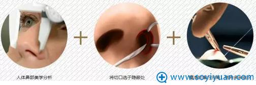 南京维多利亚宫廷鼻雕术的过程