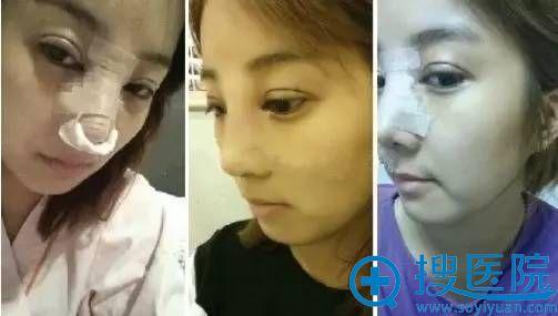 在南京维多利亚整形医院做了双眼皮+隆鼻手术当天