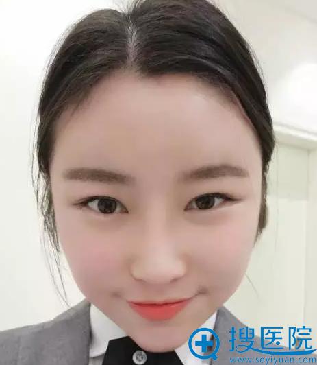 上海颜范鼻整形+自体脂肪填充案例效果术后私人照