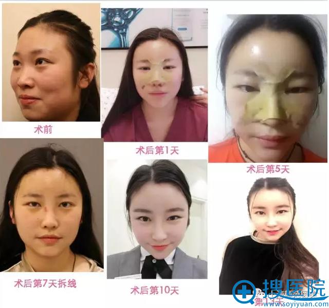 上海颜范鼻整形+自体脂肪填充案例效果恢复过程对比