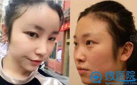 上海颜范鼻整形+自体脂肪填充案例效果对比图