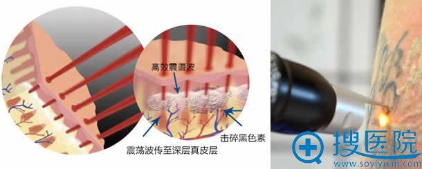 蜂巢皮秒镭射激光损伤效果