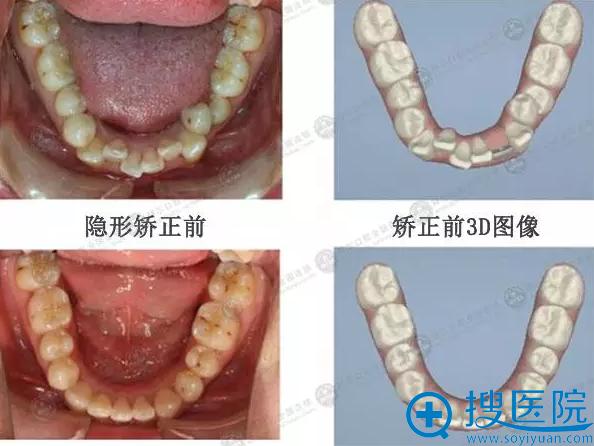 周伟安隐性牙齿矫正案例对比俯视效果
