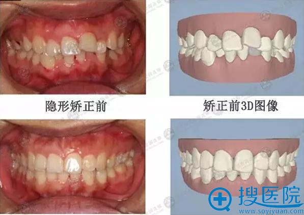 周伟安隐性牙齿矫正案例对比正面效果