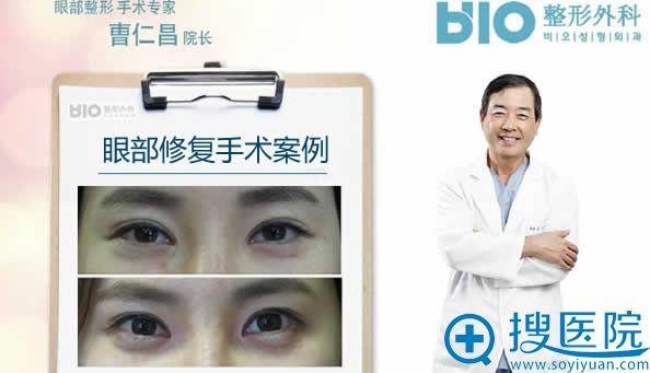 曹仁昌眼睛修复案例对比图