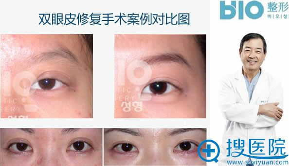 曹仁昌双眼皮修复案例对比图