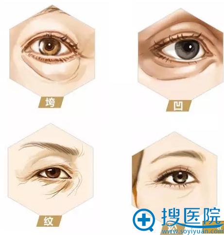 垮、凹、皱纹、松弛等是眼周常见的问题