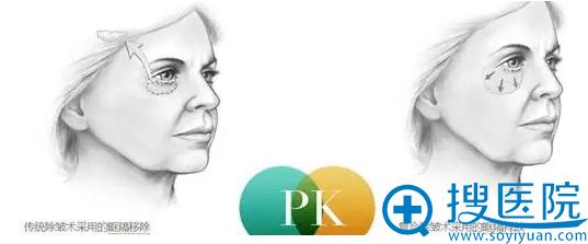 传统除皱术采用的眶隔移除和京韩宽哥释放的效果对比