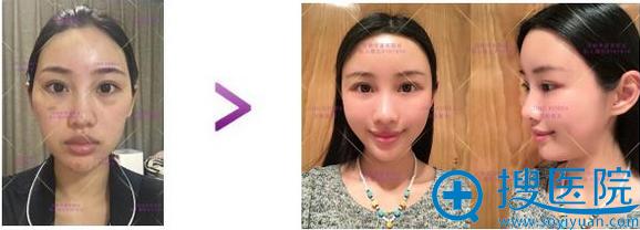 京韩眼周年轻眶隔释放术案例效果对比
