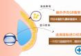 北京京韩乔爱军GR之脂肪伞丰胸术 胸部由A到D自然成形