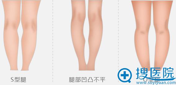 金汉musO型腿矫正适用于s型腿、腿部凹凸不平、O型腿等人群
