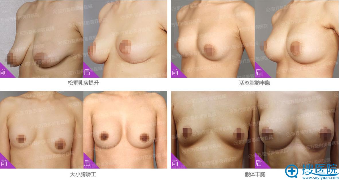 郑州东方整形医院 吴振主任案例展示: