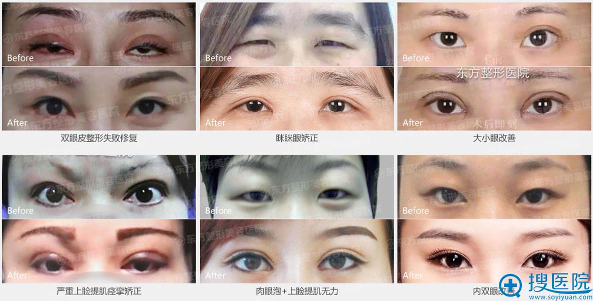 郑州东方整形医院贺洁院长案例展示:
