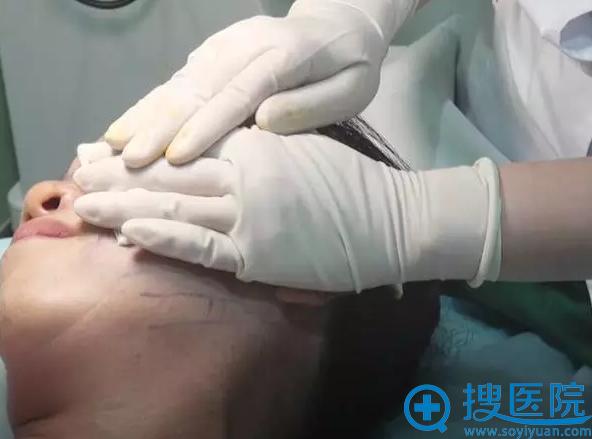 布仁医生在受术部位进行充分的按压