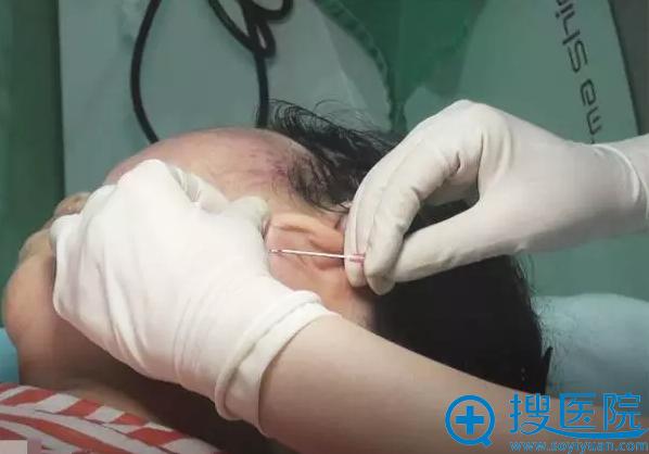 耳后的切口