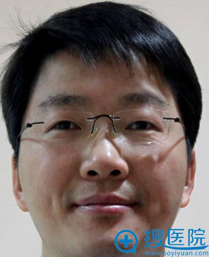 上海九院整形科 陈付国 副主任医师