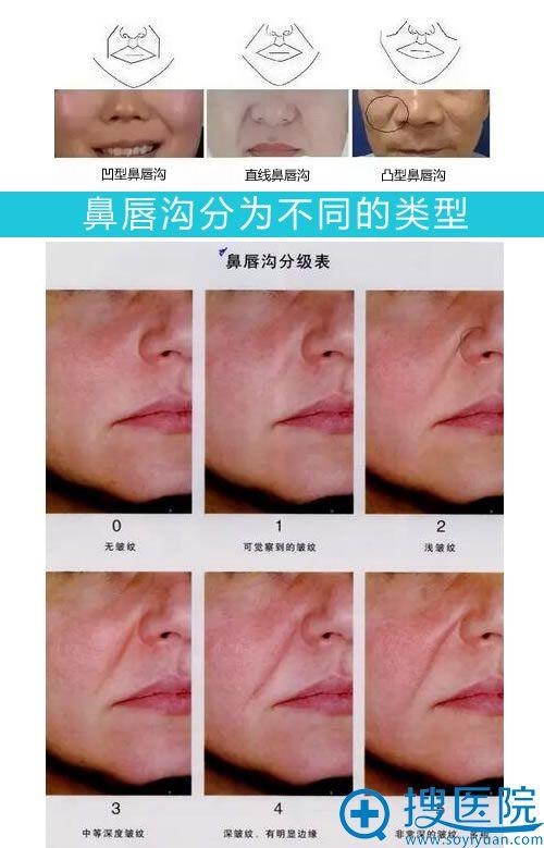 鼻唇沟分为不同的类型