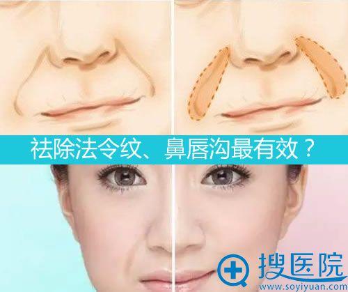 哪种方法祛除法令纹、鼻唇沟更有效