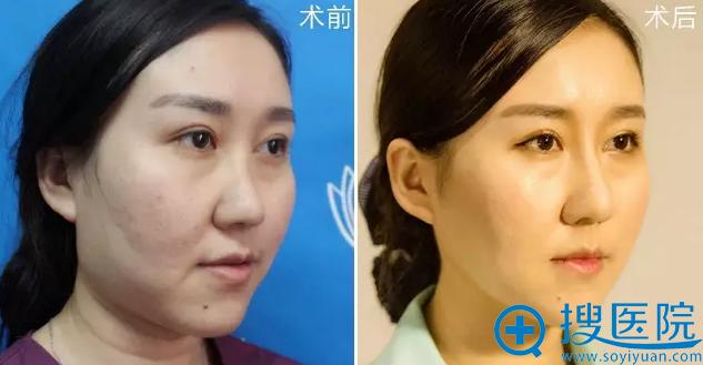 襄阳维多利亚整形医院思琳玻尿酸隆鼻45°效果对比