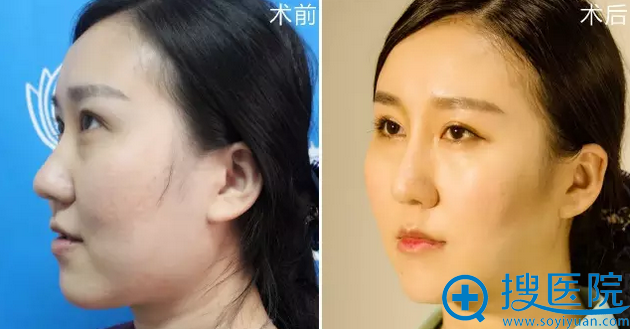 襄阳维多利亚整形医院思琳玻尿酸隆鼻侧面效果对比